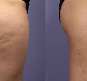 Cellulite : comment s'en débarrasser facilement et rapidement ?